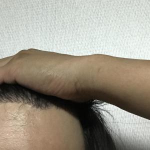 韓国自毛植毛手術になり5ヶ月と11日日目