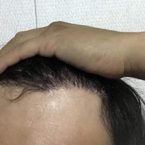 韓国自毛植毛手術後5ヶ月と12日目