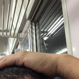 韓国自毛植毛手術後5ヶ月と13日目