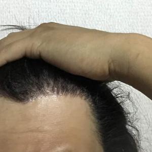 韓国自毛植毛手術後5ヶ月と14日目