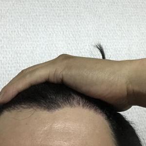韓国自毛植毛手術後5ヶ月と15日目