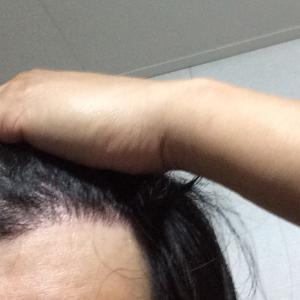 韓国自毛植毛手術後5ヶ月と16日目