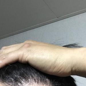 韓国自毛植毛手術後5ヶ月と17日目