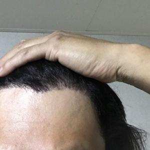 韓国自毛植毛手術後5ヶ月と18日目
