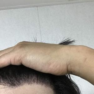 韓国自毛植毛手術後5ヶ月と20日目