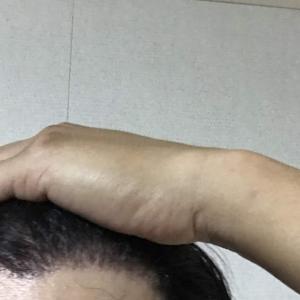 韓国自毛植毛手術後5ヶ月と21日目