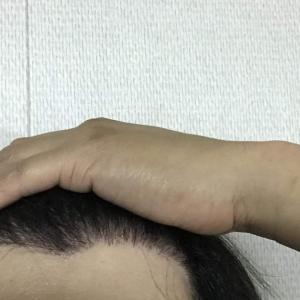韓国自毛植毛手術後5ヶ月と22日目