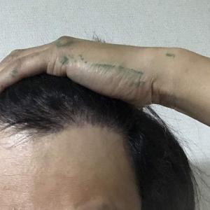 韓国自毛植毛手術後5ヶ月と26日目