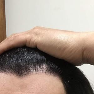 韓国自毛植毛手術後6ヶ月と29日目