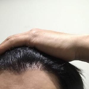 韓国自毛植毛手術後6ヶ月と30日目