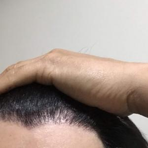 韓国自毛植毛手術後7ヶ月と1日目