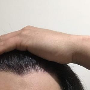 韓国自毛植毛手術後7ヶ月と2日目
