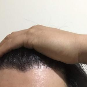 韓国自毛植毛手術後7ヶ月と3日目