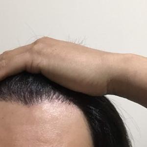韓国自毛植毛手術後7ヶ月と4日目