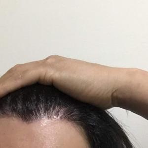 韓国自毛植毛手術後7ヶ月と5日目