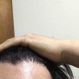 韓国自毛植毛手術後7ヶ月と28日目