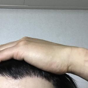 韓国自毛植毛手術後7ヶ月と29日目