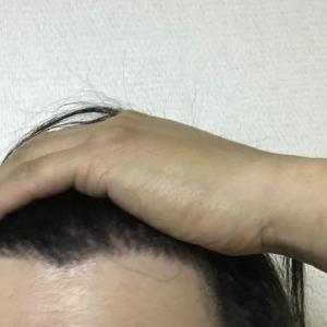 韓国自毛植毛手術後7ヶ月と30日目