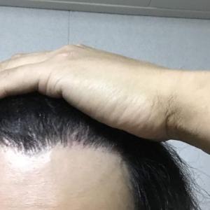 韓国自毛植毛手術後8ヶ月と9日目