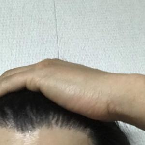 韓国自毛植毛手術後8ヶ月と11日目