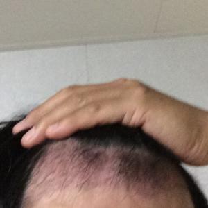 韓国自毛植毛手術後2ヶ月と6日目※産声よ響け!