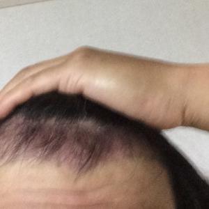 韓国自毛植毛手術後2ヶ月と1週間目※悪い予感!?