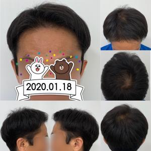 40.植毛後30週