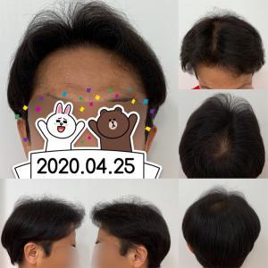 54.植毛後10ヵ月