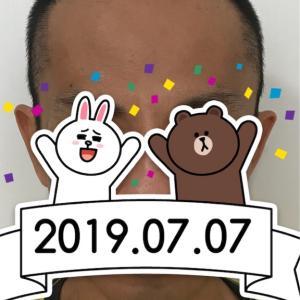 12.植毛後2週間(カサブタ取り)