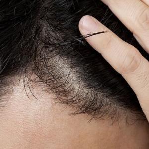 【新型コロナ】髪の薄い男性は重症化リスクが高い 米やスペインの研究者らが論文