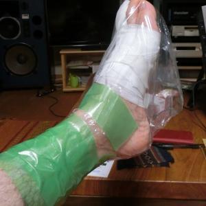 多分、指趾粘液嚢腫