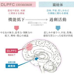双極性障害とうつ病では前頭葉体積に違いあり