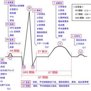 抗うつ剤で心電図に異常か?
