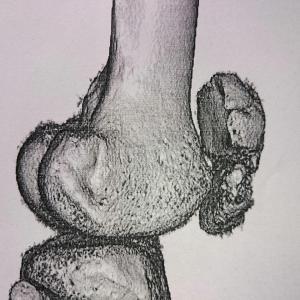 右膝蓋骨の骨折