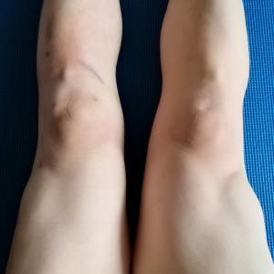 術後7ヶ月 太腿の左右差広がる(29週+4日)