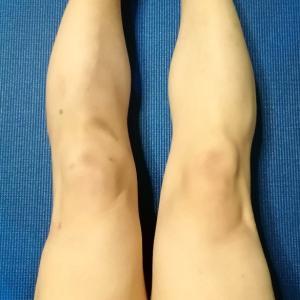 最近の膝の調子 〜 左右差約2cm(術後1年2ヶ月+4日)