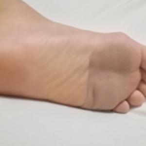 足の裏が痛い!足底疣贅(術後1年5ヶ月ちょうど)