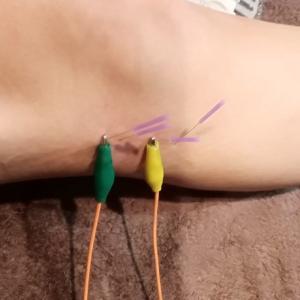 とうとう健脚(右)にも鍼治療。。。(術後1年10ヶ月+9日)