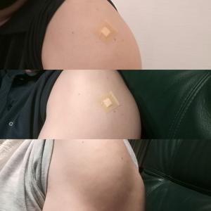 ワクチン接種2回目完了!経過は?(術後2年4ヶ月+15日