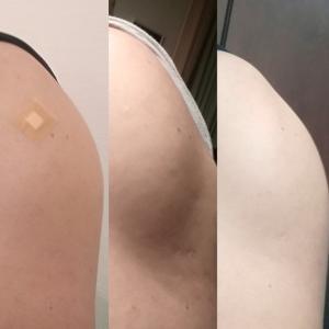 ワクチン接種2回目 翌日の経過は?(術後2年4ヶ月+16日)