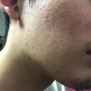 肌断食2日目