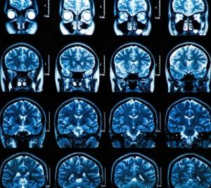 脳ドック検診を受ける