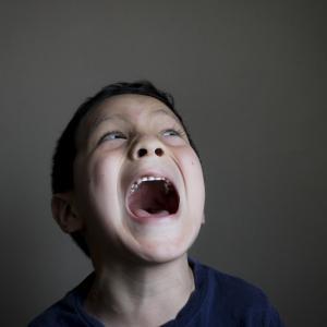 【前歯にひび】子供が転んで前歯を強打し、ひび→欠けた話【写真あり】