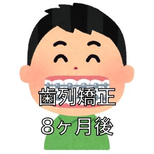 歯列矯正の調整8回目