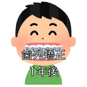 【1年経過】歯列矯正の調整11回目