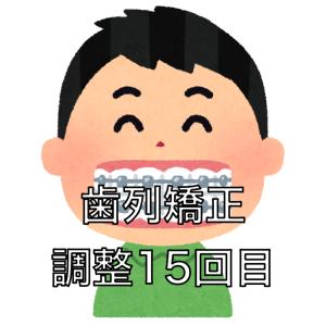 歯列矯正の調整15回目