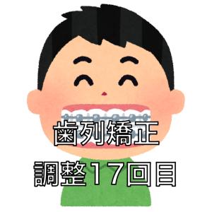 歯列矯正の調整17回目