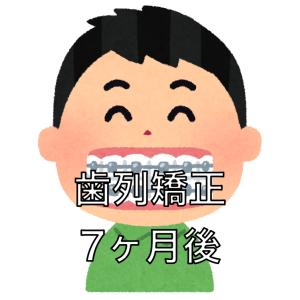 歯列矯正の調整7回目
