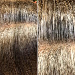 高発生水素SO-CAREで抗酸化!白髪が減ります