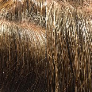 高発生水素SO-CAREで白髪を減らせる時代です!